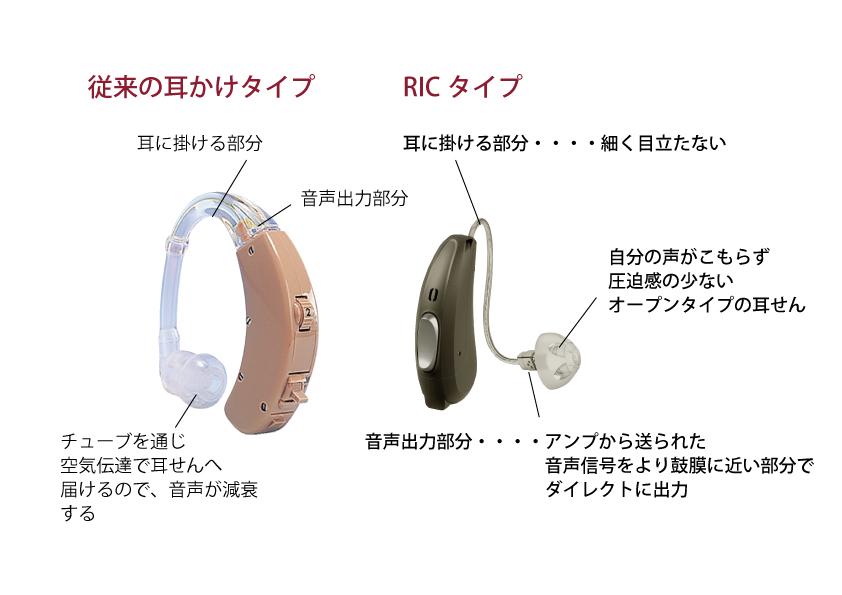耳かけRIC比較-1